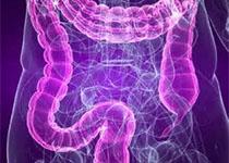 肠道菌群失调可能导致硬皮病的发生