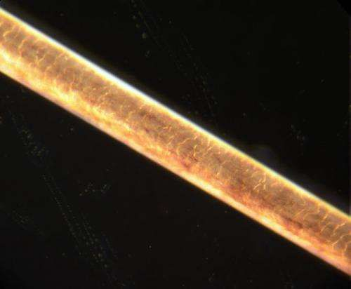 Genes&Dev:科学家找到导致少白头和谢顶的潜在细胞和基因