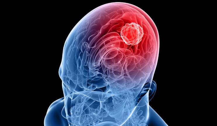 科学家开发出首个球形核酸药物能够直接注射到患者体内靶向作用胶质母细胞瘤