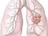 PLoS Pathog:结核杆菌可抑制免疫系统传播疾病!