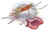 不容忽视的疟疾后遗症和一个简单有效的预防措施