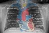 结缔组织病相关的间质性肺病(CTD-ILD)基础知识