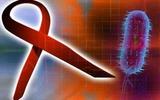 自身免疫疾病障碍会大大增加感染HIV的几率