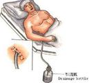 患者刚刚回病房,胸腔引流管就滑脱,为何?