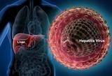 J Gastroenterol:乙型肝炎病毒A基因型的病毒学和临床特征