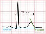 最全总结——短QT综合征,从诊断到治疗