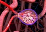轻链近端肾小管病的临床病理特点