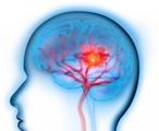 脑侧支循环建立的影像学评估