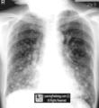 胸部典型征象丨肺暴风雪征