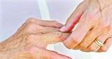 高频超声在类风湿性关节炎中的临床应用