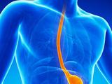 Barrett食管冷冻治疗的研究进展