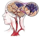 缺血性脑卒中的影像学进展