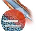 研究汇总:药物涂层球囊治疗最新进展Top5