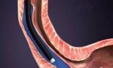 经口内镜下肌切开术治疗贲门失弛缓症操作要点及其现状