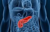血清甘油三酯升高与急性胰腺炎预后有何关联?