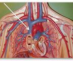 一文回顾 上腔静脉综合征的来龙去脉