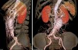 Radiology:腹主动脉瘤腔内修复术后评价瘤囊的最佳指标!