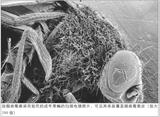 感冒病毒干掉癌细胞?