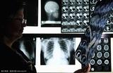 18F-脱氧葡萄糖PET/CT影像纹理分析在头颈部和食管肿瘤研究中的进展