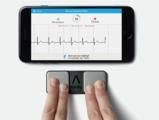 [ESC2017]REHEARSE-AF:智能移动设备引领下的房颤筛查新趋势
