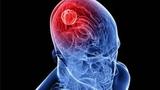 低级别胶质瘤诊疗策略更新