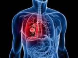 扩散加权成像在肺癌中的应用进展