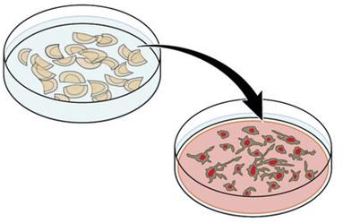Nature:NLGN3蛋白缺乏可阻止高分级神经胶质瘤生长