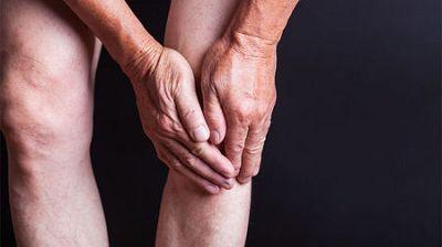 关节炎的发病机制与治疗领域进展一览