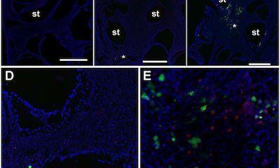 PlosPathogen:NK细胞会保护机体免受CMV感染引发的听力下降