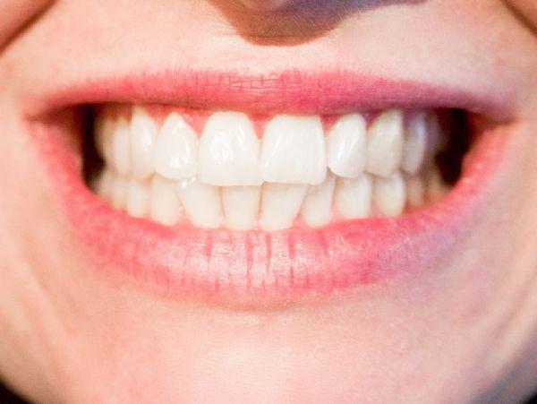 CellHost&Microbe:牙痛不要怪基因,改善饮食吧!