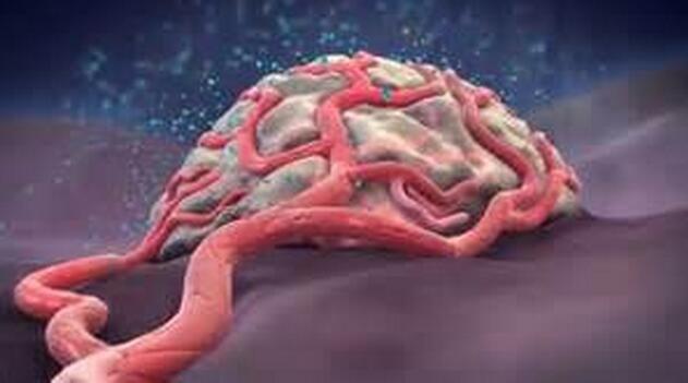 PNAS:新型药物普乐沙福或能有效阻断癌症对抗血管生成疗法的耐受性