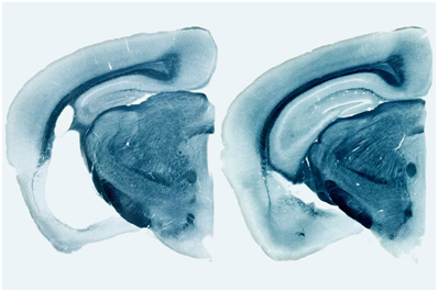 Nature:重磅!ApoE4显著恶化tau蛋白介导的神经损伤