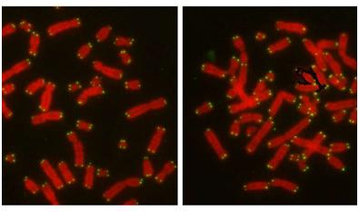 Nature:重大突破!揭示蛋白CYREN调节细胞选择DNA修复途径之谜