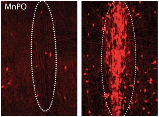 Science:重大突破!发现调节口渴的神经元